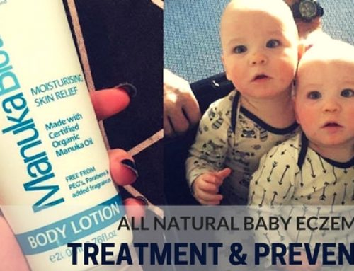 All Natural Baby Eczema Treatment and Prevention